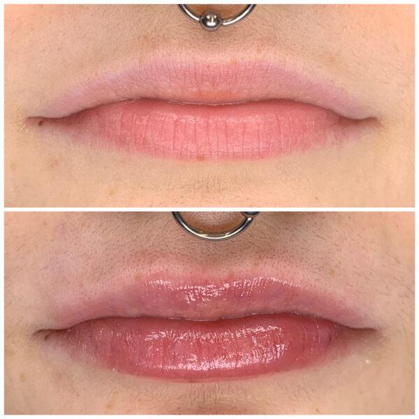labios hyaluron pen acido hialuronico tratamiento hidratacion intensiva