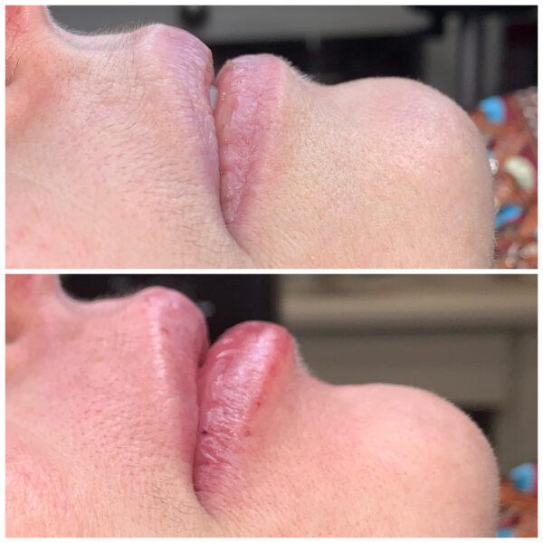 hyaluron pen bilbao relleno arrugas ácido hialurónico labios
