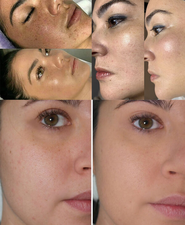 tratamiento ccglow bilbao microneedling mesoterapia