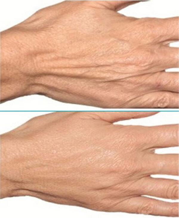acido hialuronico para rejuvenecer manos bilbao