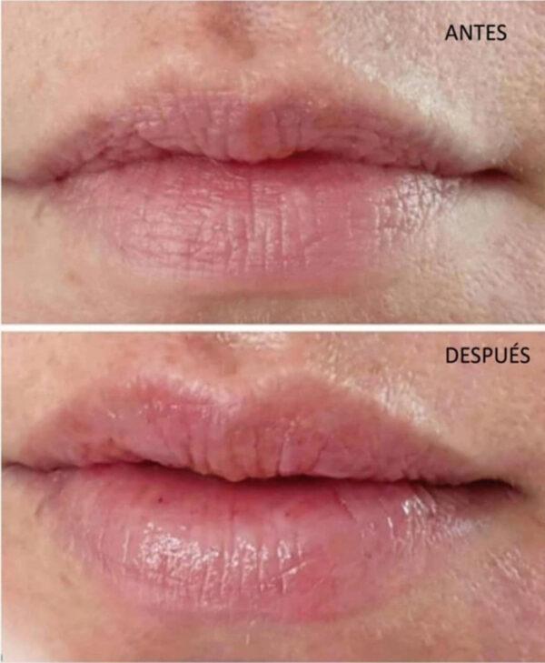 hyalu in hyaluron pen relleno labios arrugas bilbao