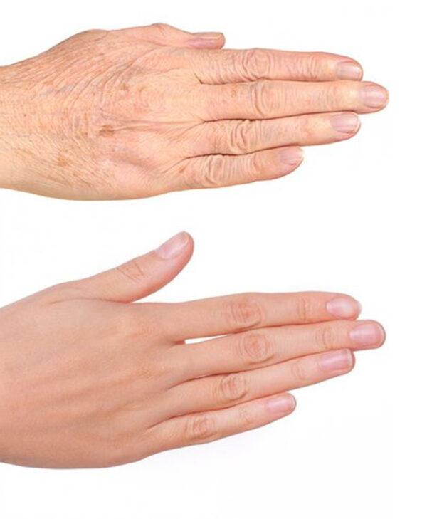 rejuvenecimiento de manos con ácido hialurónico bilbao