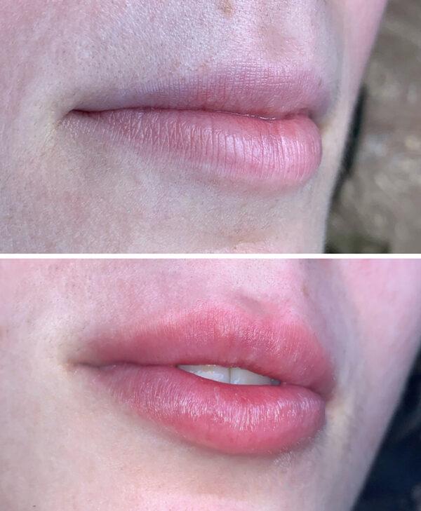 mejor relleno labios hialuronico bilbao hyaluron pen bizkaia vizcaya